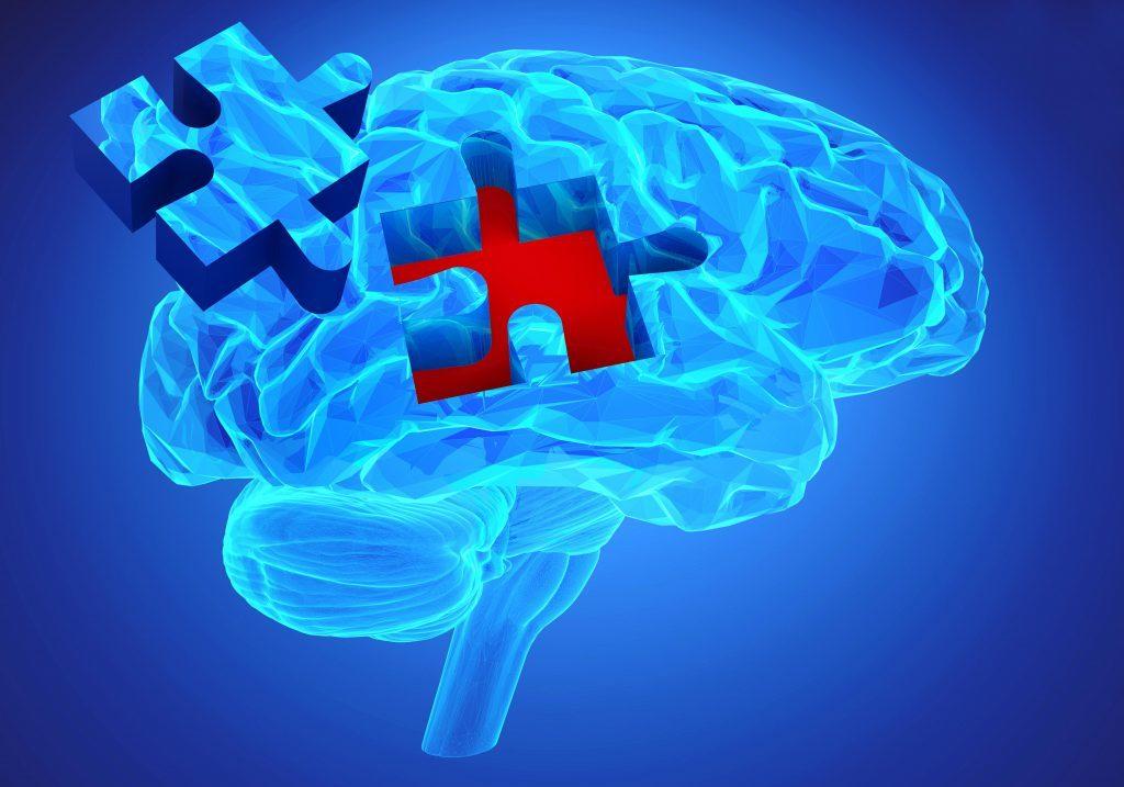 Alzheimer Nervenwasser 1024x717